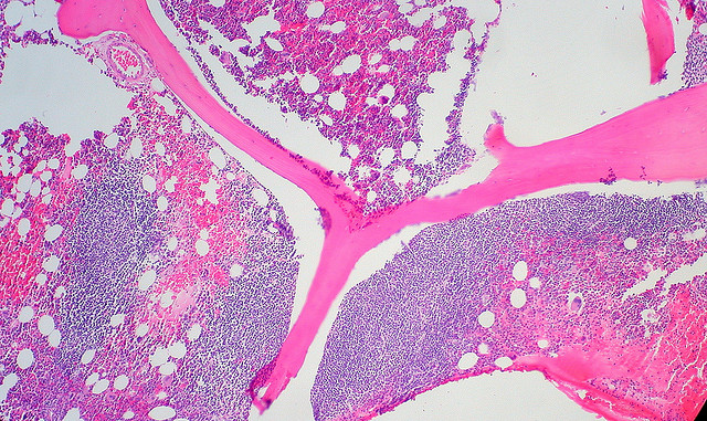 A stained slide showing follicular lymphoma spreading through a patient's bone marrow.