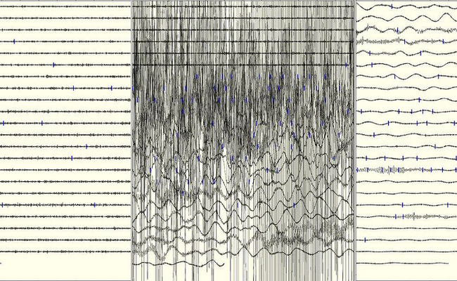 A seismogram of an incredibly intense earthquake.